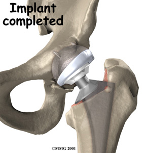 Image of hip replacement implant in the hip joint.